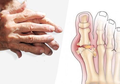 articulația umflată și dureroasă pe picior tipuri. leziuni la genunchi
